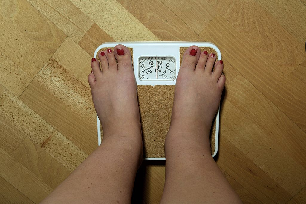anonymous woman, 42, on the scales before her weight loss surgery