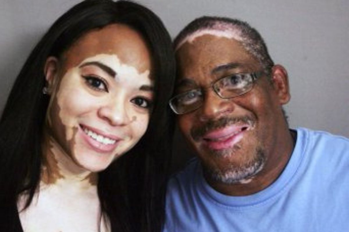 father and daughter with vitiligo