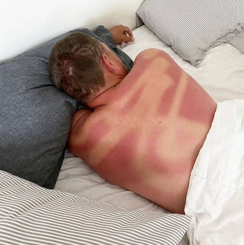 wife failed at applying sunscreen