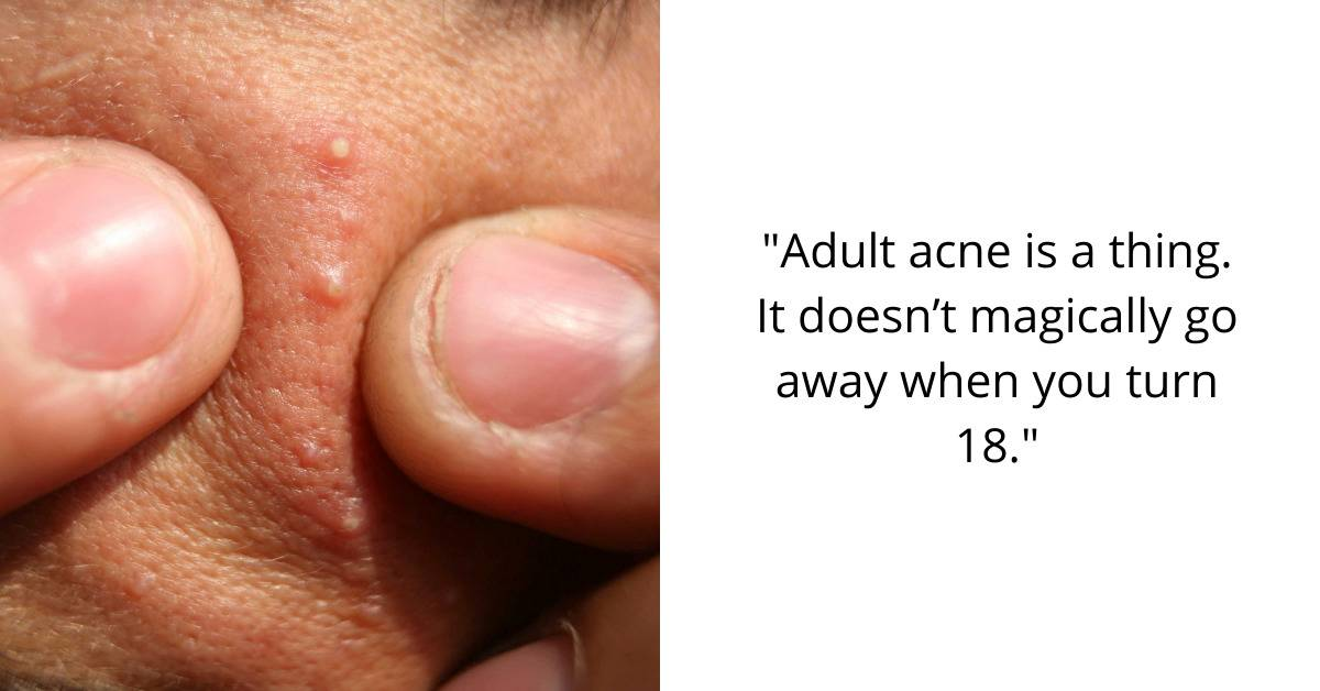 adult acne is a thing. It doesn't magically go away when you turn 18.